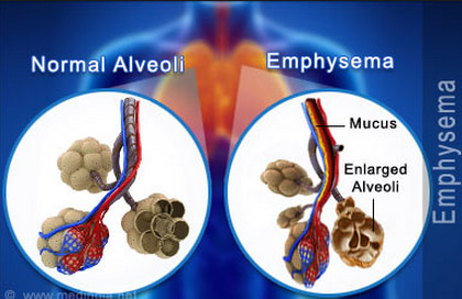 normal-alveoli-vs-emphysema
